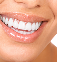 Teeth Whitening Services Rockville, MD